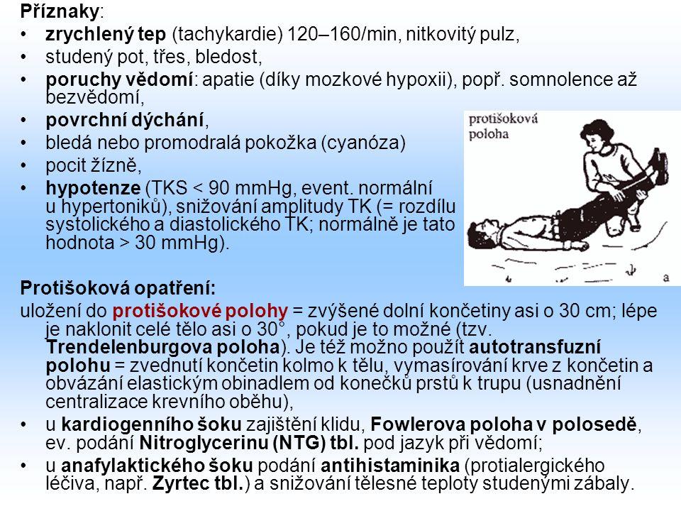 Příznaky: zrychlený tep (tachykardie) 120–160/min, nitkovitý pulz, studený pot, třes, bledost,