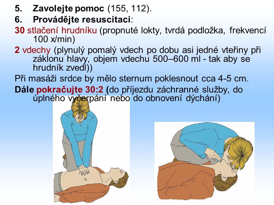 Zavolejte pomoc (155, 112). Provádějte resuscitaci: 30 stlačení hrudníku (propnuté lokty, tvrdá podložka, frekvencí 100 x/min)