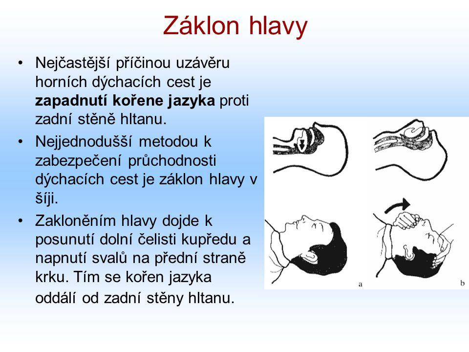 Záklon hlavy Nejčastější příčinou uzávěru horních dýchacích cest je zapadnutí kořene jazyka proti zadní stěně hltanu.