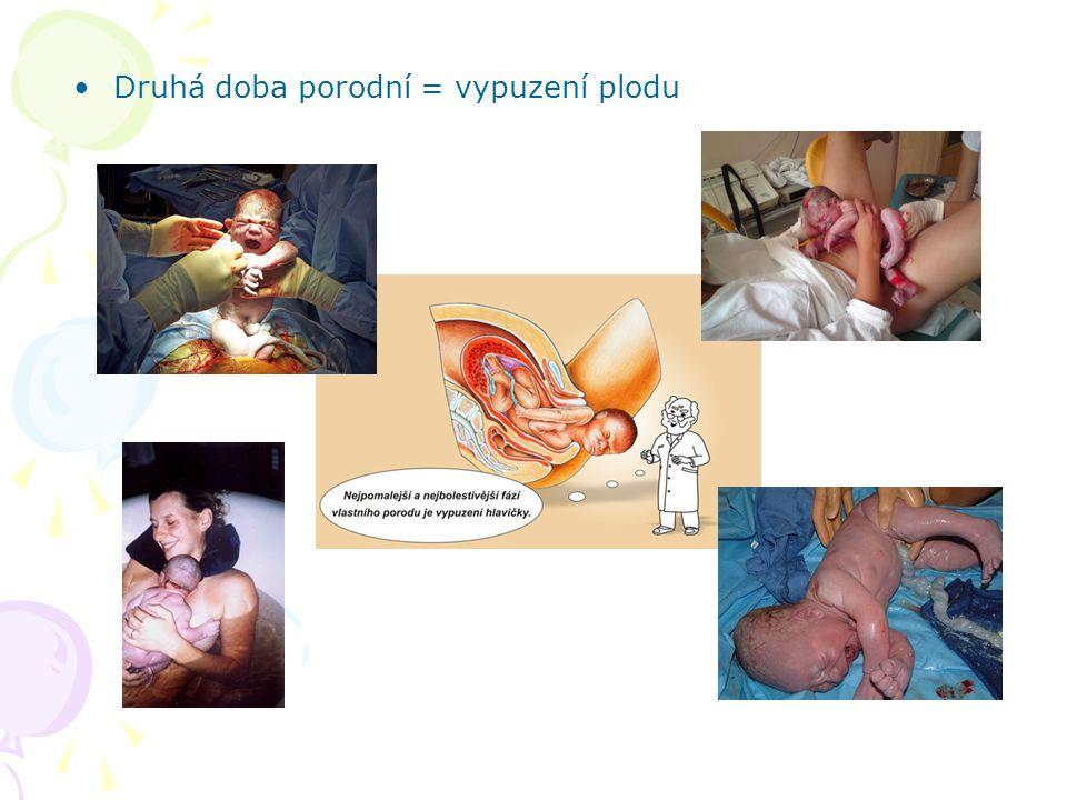 Druhá doba porodní = vypuzení plodu