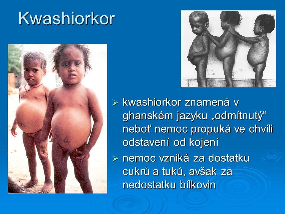 """Kwashiorkor kwashiorkor znamená v ghanském jazyku """"odmítnutý neboť nemoc propuká ve chvíli odstavení od kojení."""