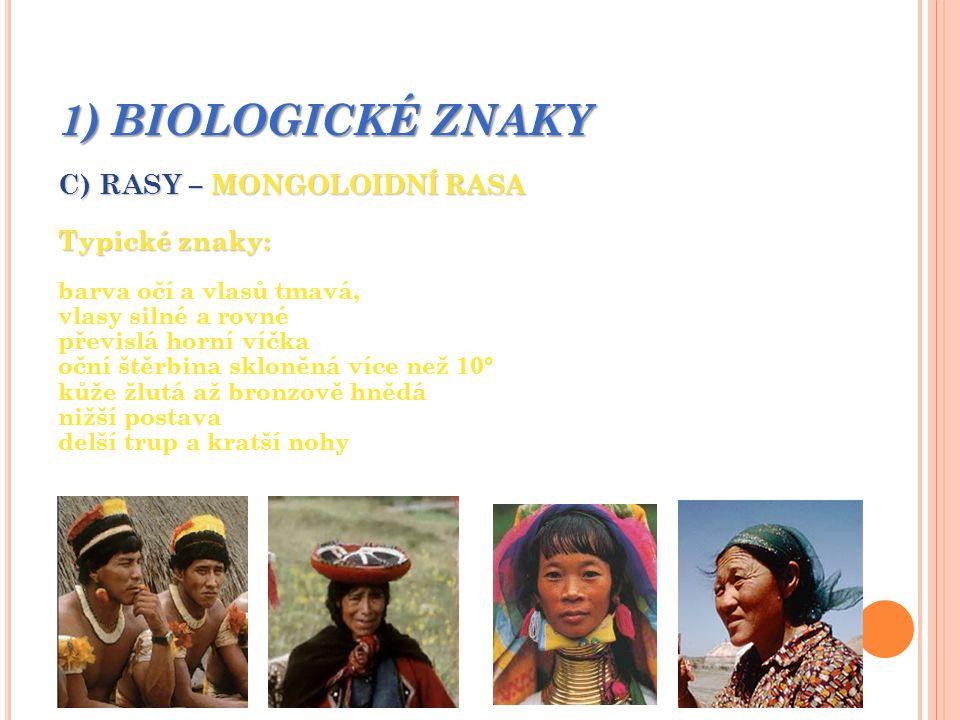1) BIOLOGICKÉ ZNAKY C) RASY – MONGOLOIDNÍ RASA Typické znaky: