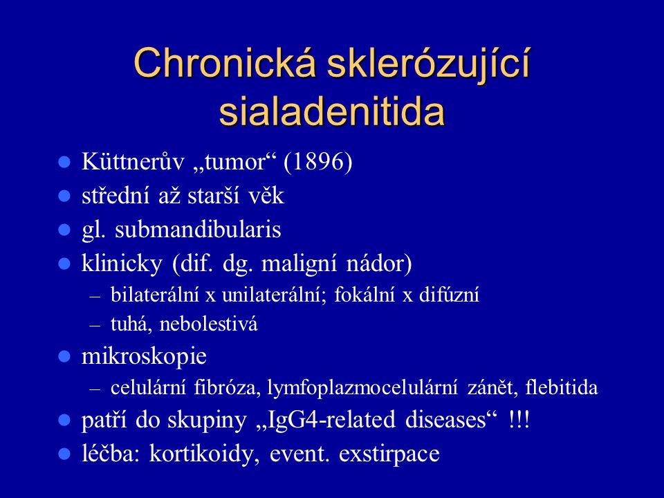 Chronická sklerózující sialadenitida
