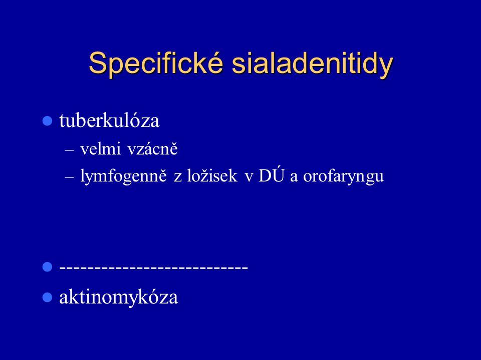Specifické sialadenitidy