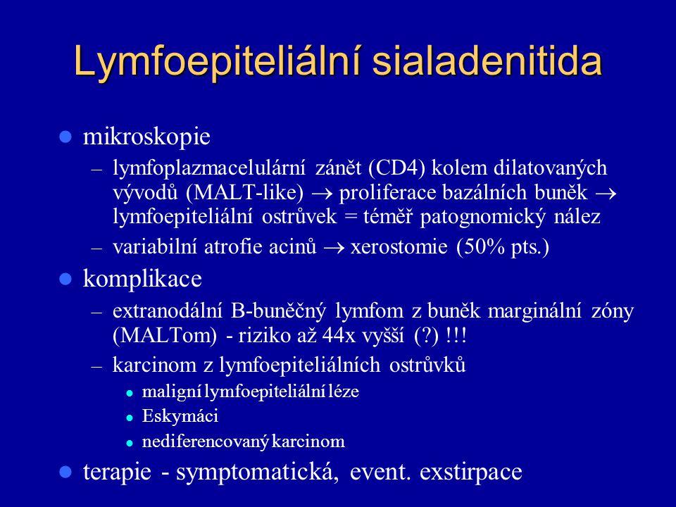 Lymfoepiteliální sialadenitida