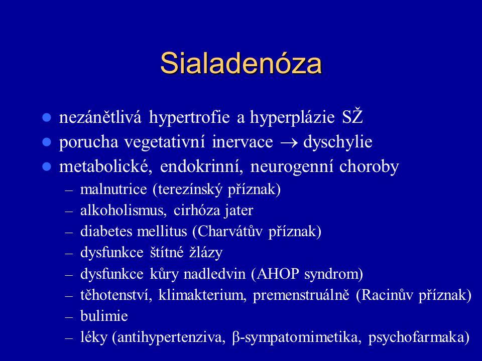 Sialadenóza nezánětlivá hypertrofie a hyperplázie SŽ