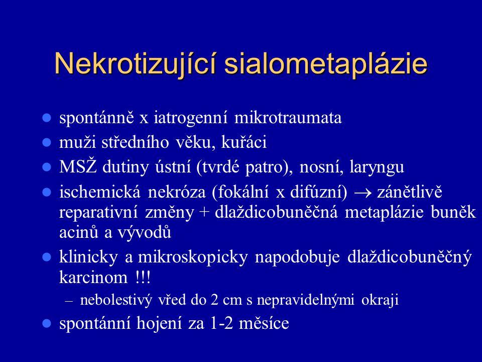 Nekrotizující sialometaplázie