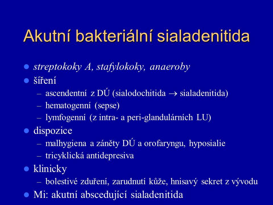 Akutní bakteriální sialadenitida