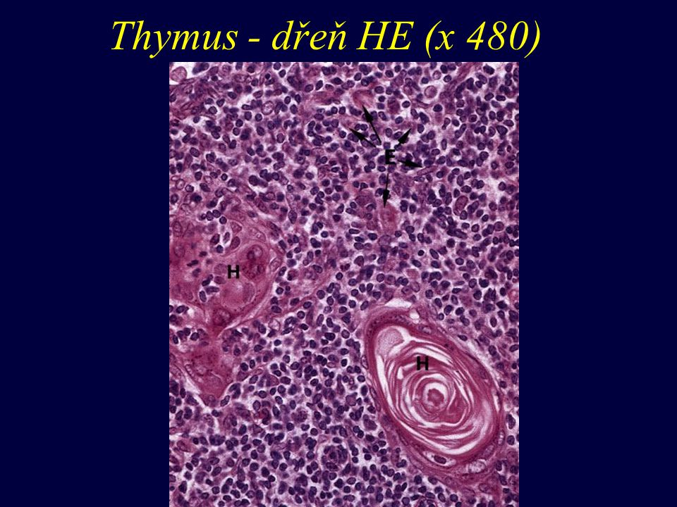 Thymus - dřeň HE (x 480)
