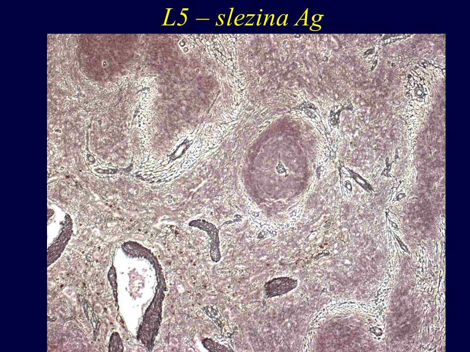 L5 – slezina Ag