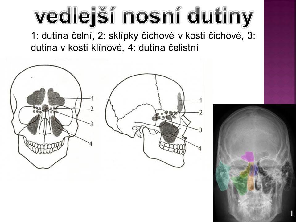 vedlejší nosní dutiny 1: dutina čelní, 2: sklípky čichové v kosti čichové, 3: dutina v kosti klínové, 4: dutina čelistní.
