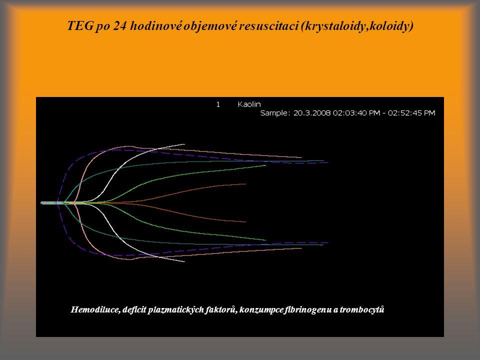 TEG po 24 hodinové objemové resuscitaci (krystaloidy,koloidy)