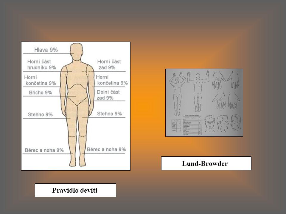Lund-Browder Pravidlo devíti