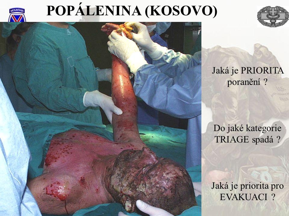 POPÁLENINA (KOSOVO) Jaká je PRIORITA poranění