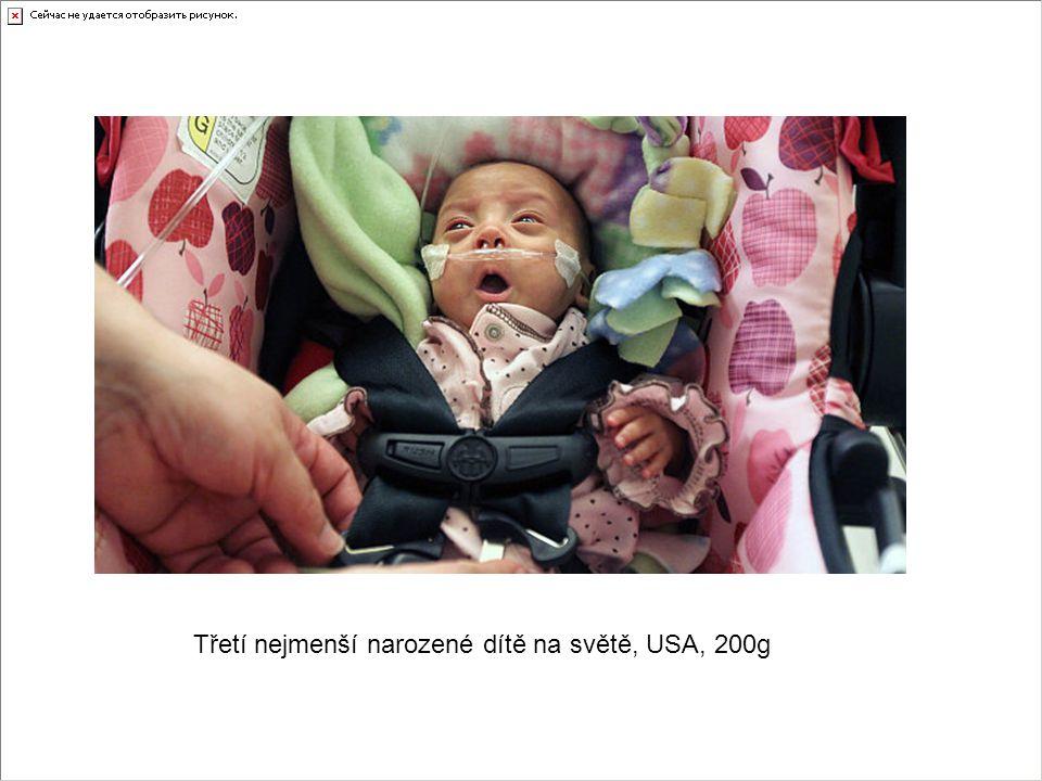 Třetí nejmenší narozené dítě na světě, USA, 200g