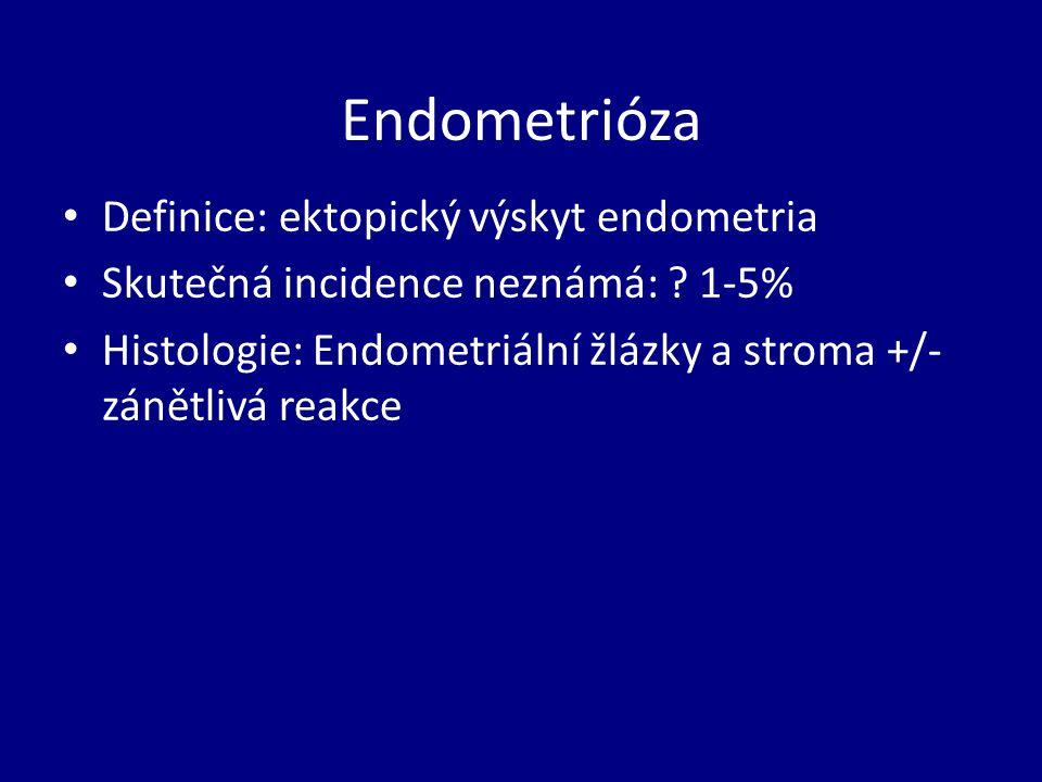 Endometrióza Definice: ektopický výskyt endometria