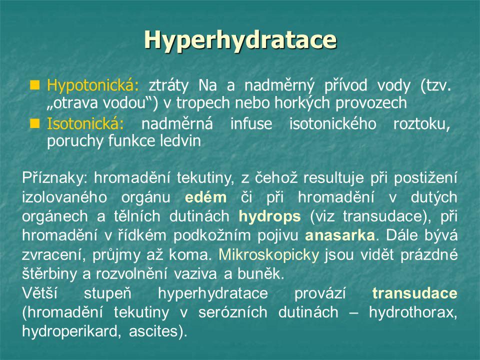 """Hyperhydratace Hypotonická: ztráty Na a nadměrný přívod vody (tzv. """"otrava vodou ) v tropech nebo horkých provozech."""