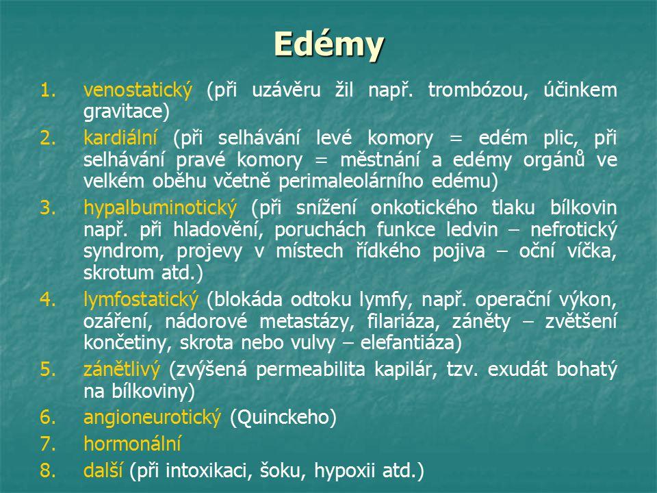 Edémy venostatický (při uzávěru žil např. trombózou, účinkem gravitace)
