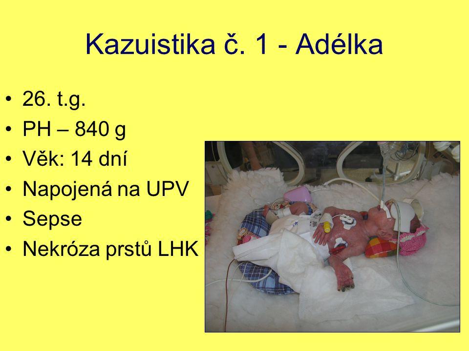 Kazuistika č. 1 - Adélka 26. t.g. PH – 840 g Věk: 14 dní