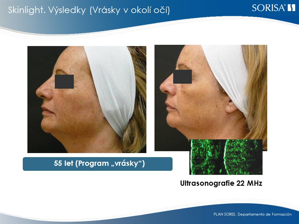 "55 let (Program ""vrásky )"