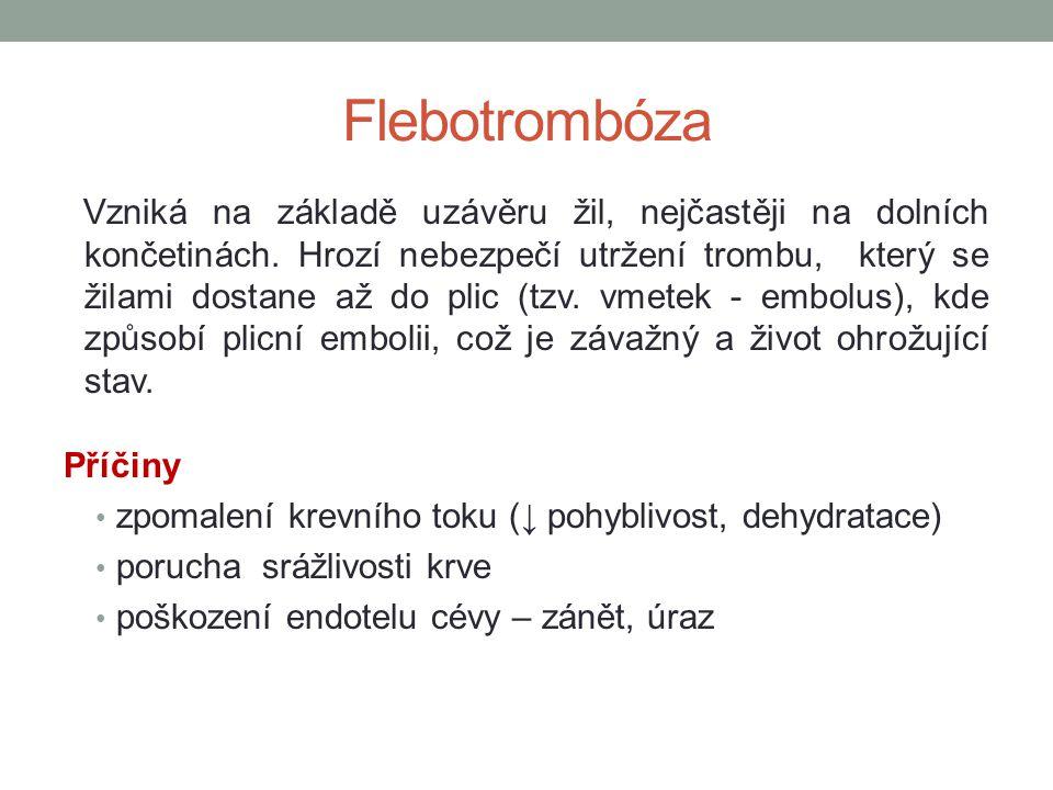 Flebotrombóza