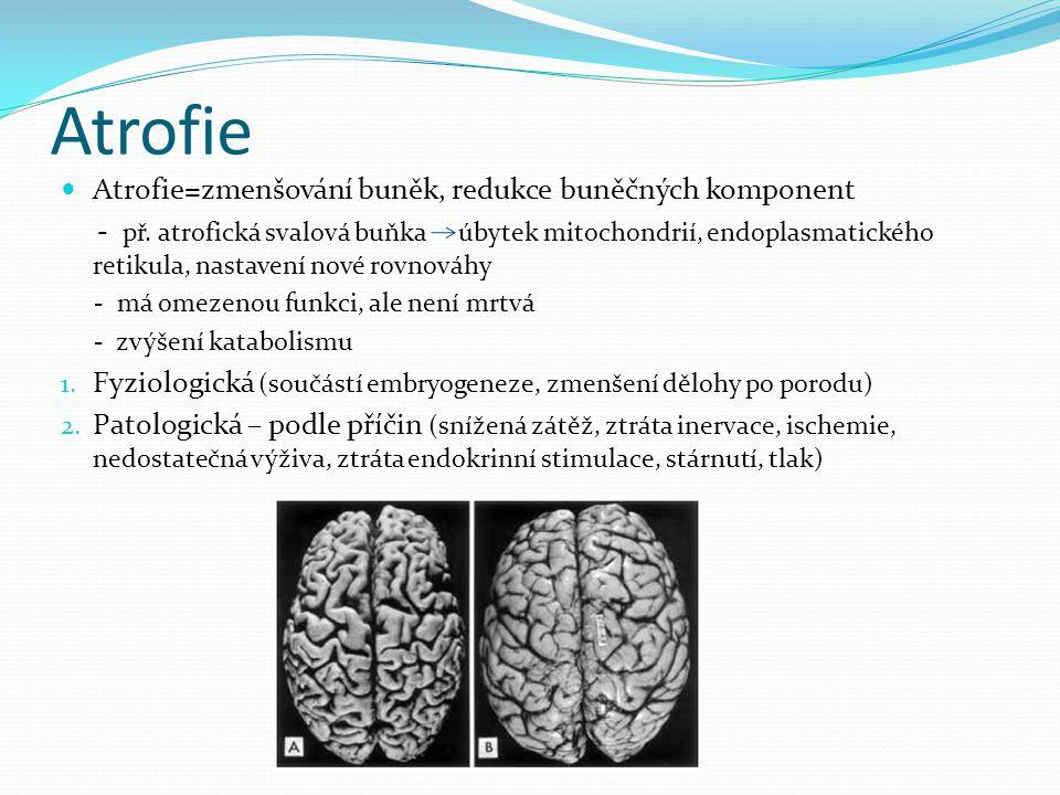 Atrofie Atrofie=zmenšování buněk, redukce buněčných komponent
