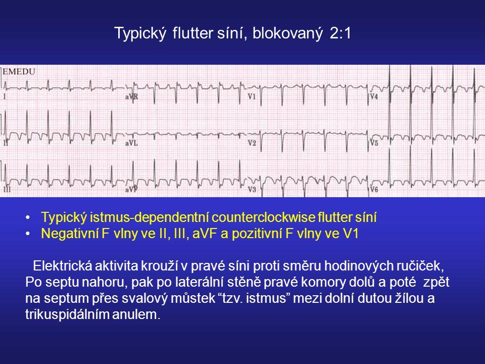 Typický flutter síní, blokovaný 2:1