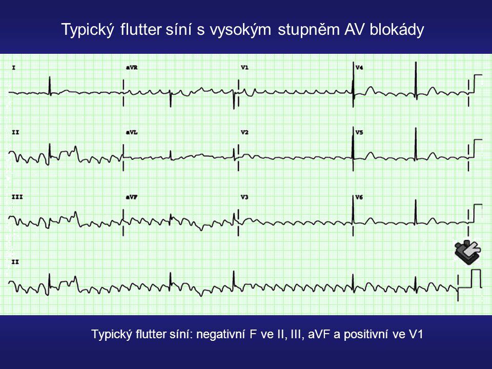 Typický flutter síní s vysokým stupněm AV blokády
