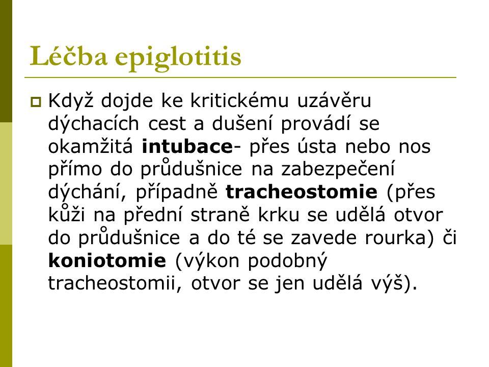 Léčba epiglotitis