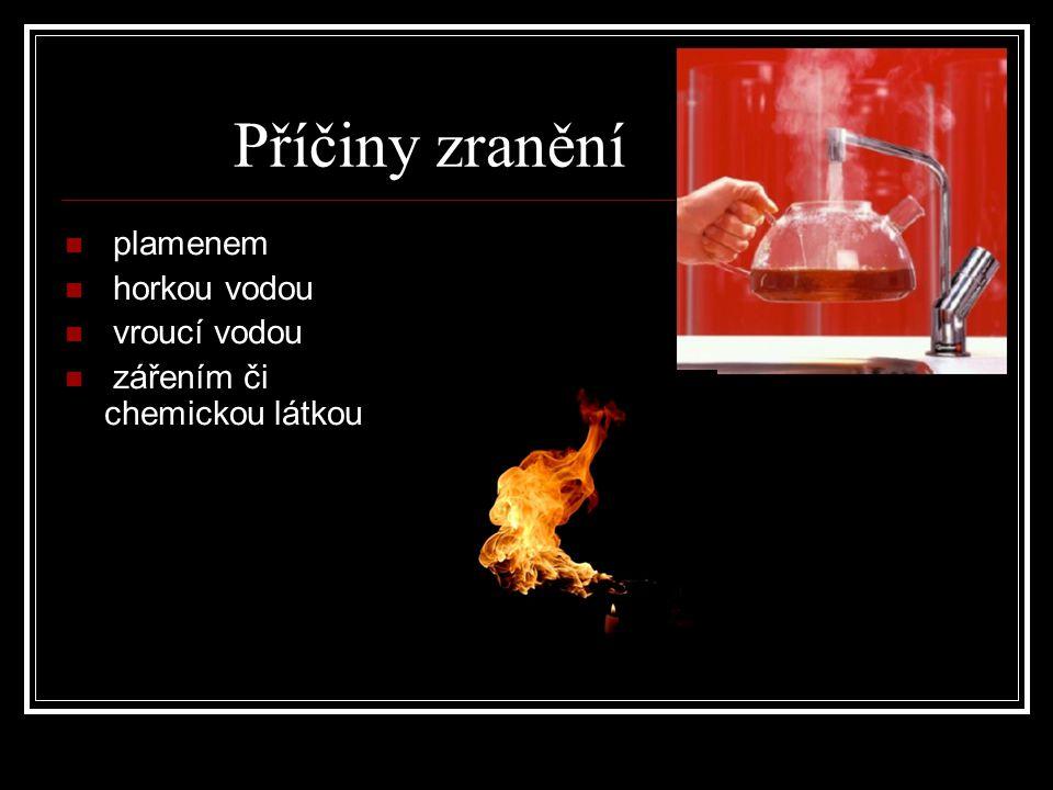 Příčiny zranění plamenem horkou vodou vroucí vodou