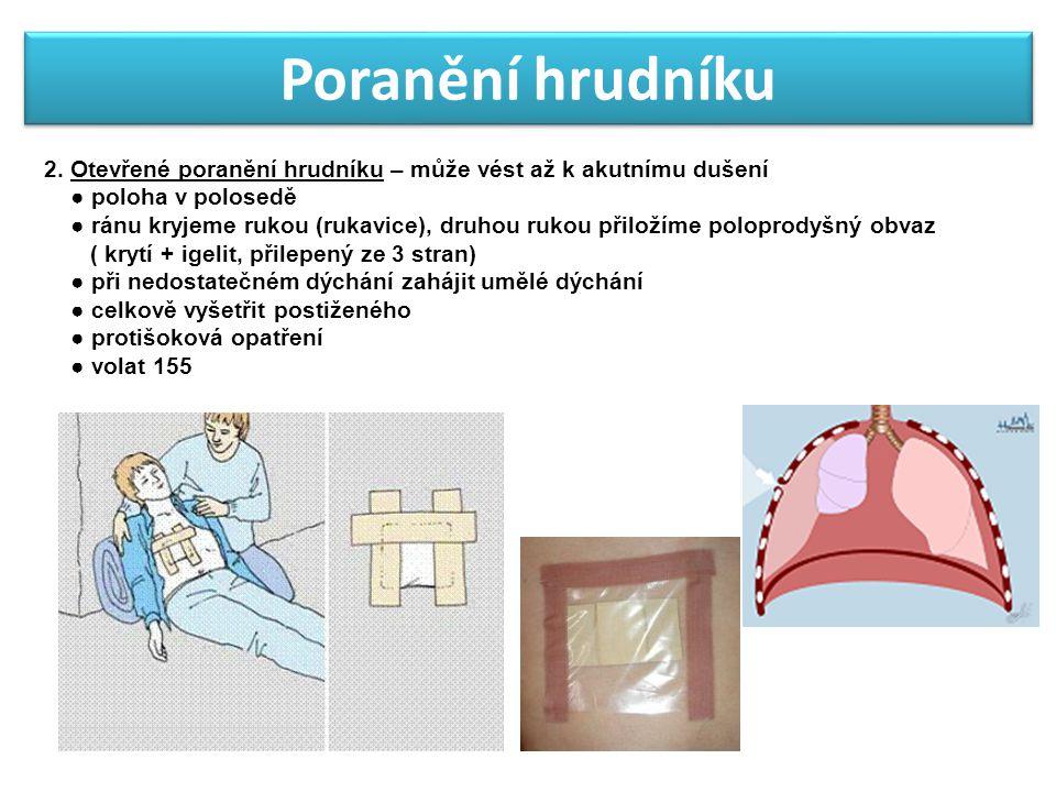 Poranění hrudníku 2. Otevřené poranění hrudníku – může vést až k akutnímu dušení. ● poloha v polosedě.