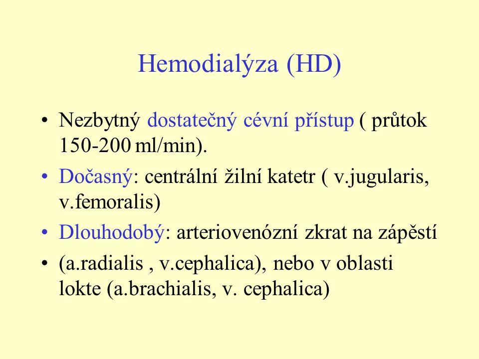 Hemodialýza (HD) Nezbytný dostatečný cévní přístup ( průtok 150-200 ml/min). Dočasný: centrální žilní katetr ( v.jugularis, v.femoralis)