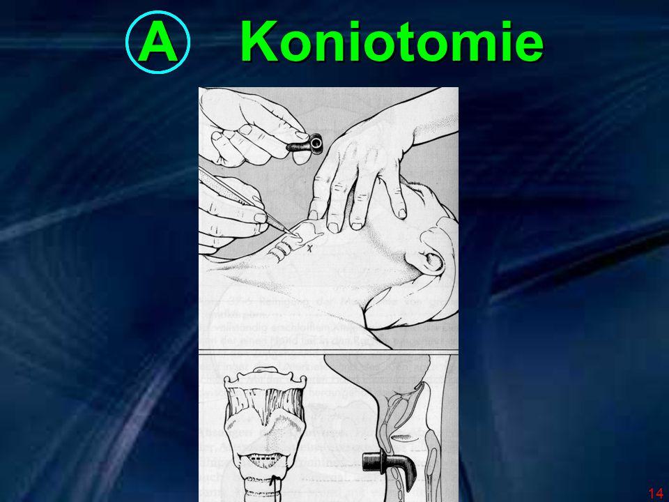 A Koniotomie