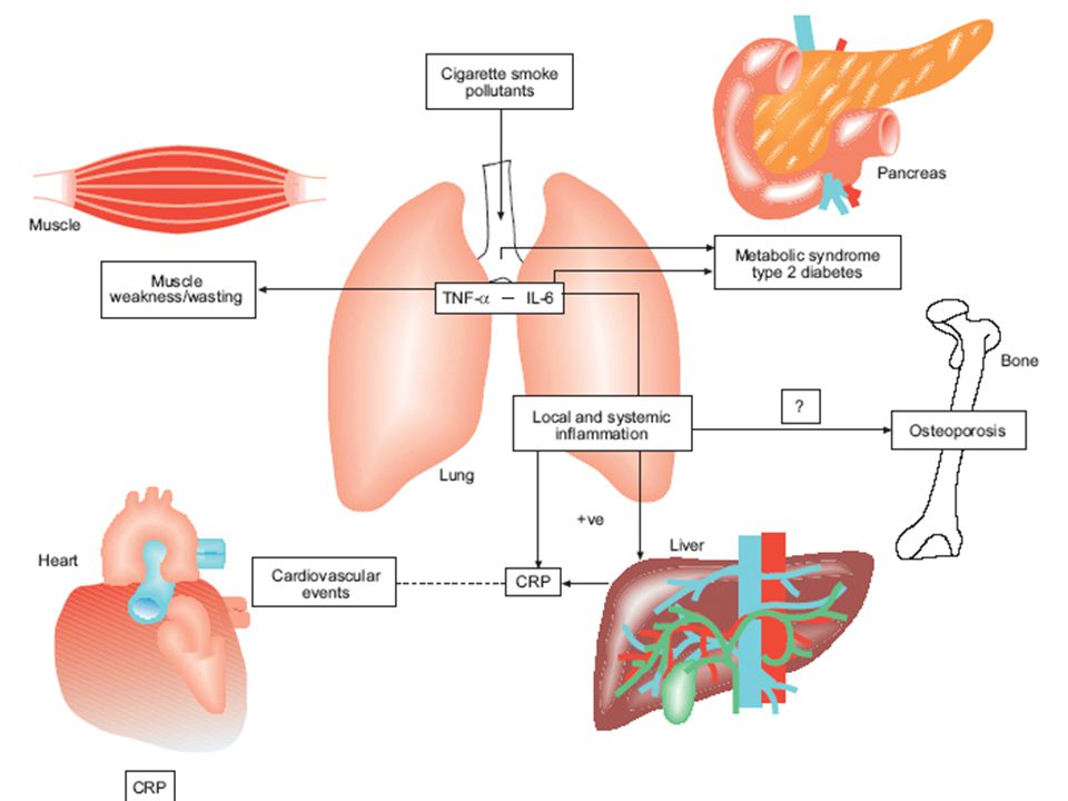 FIGURE 1. The central role of inflammation in comorbidity is associated with chronic obstructive pulmonary disease (COPD). Inflammation appears to play a central role