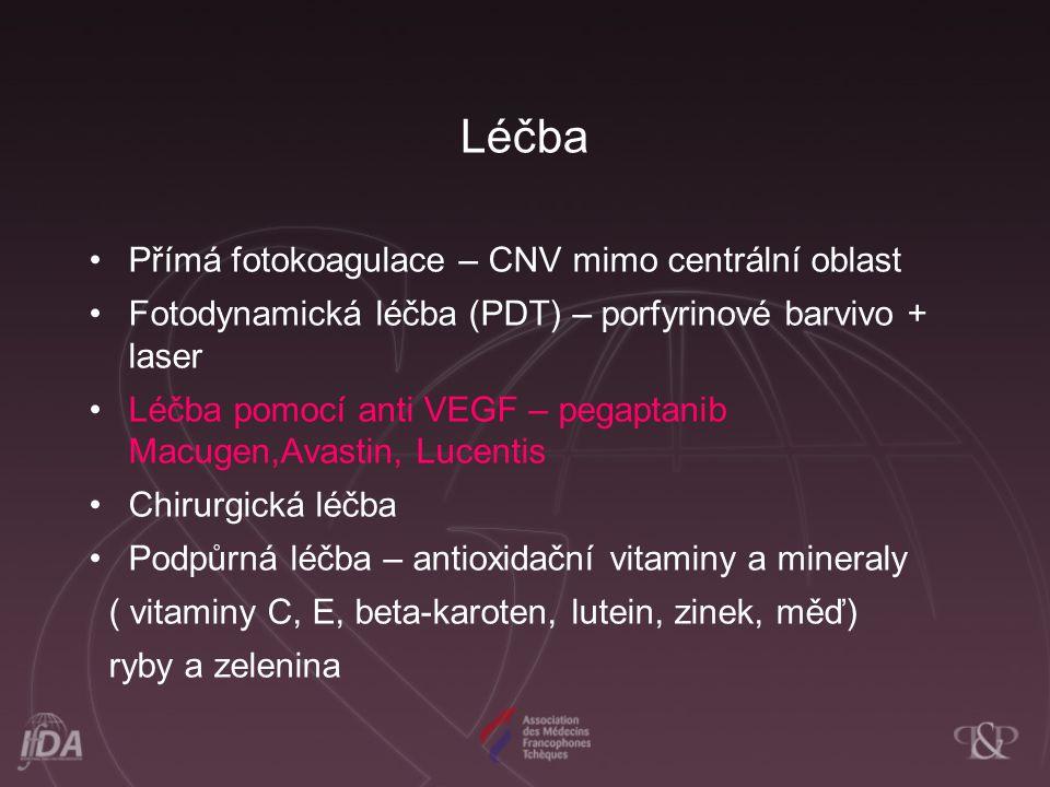 Léčba Přímá fotokoagulace – CNV mimo centrální oblast