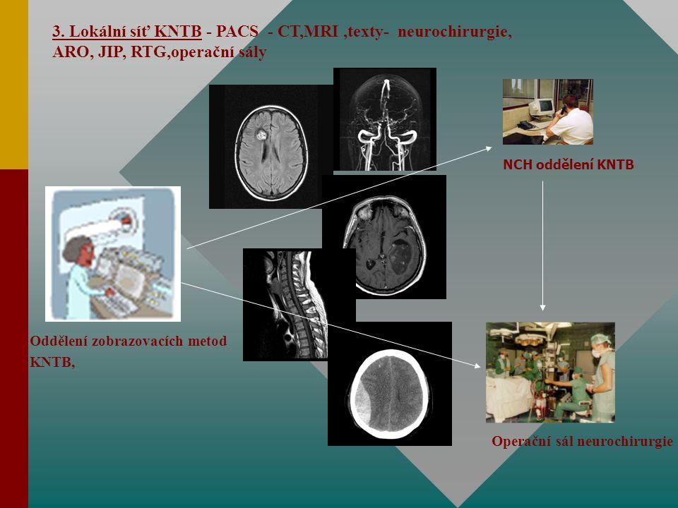 3. Lokální síť KNTB - PACS - CT,MRI ,texty- neurochirurgie, ARO, JIP, RTG,operační sály