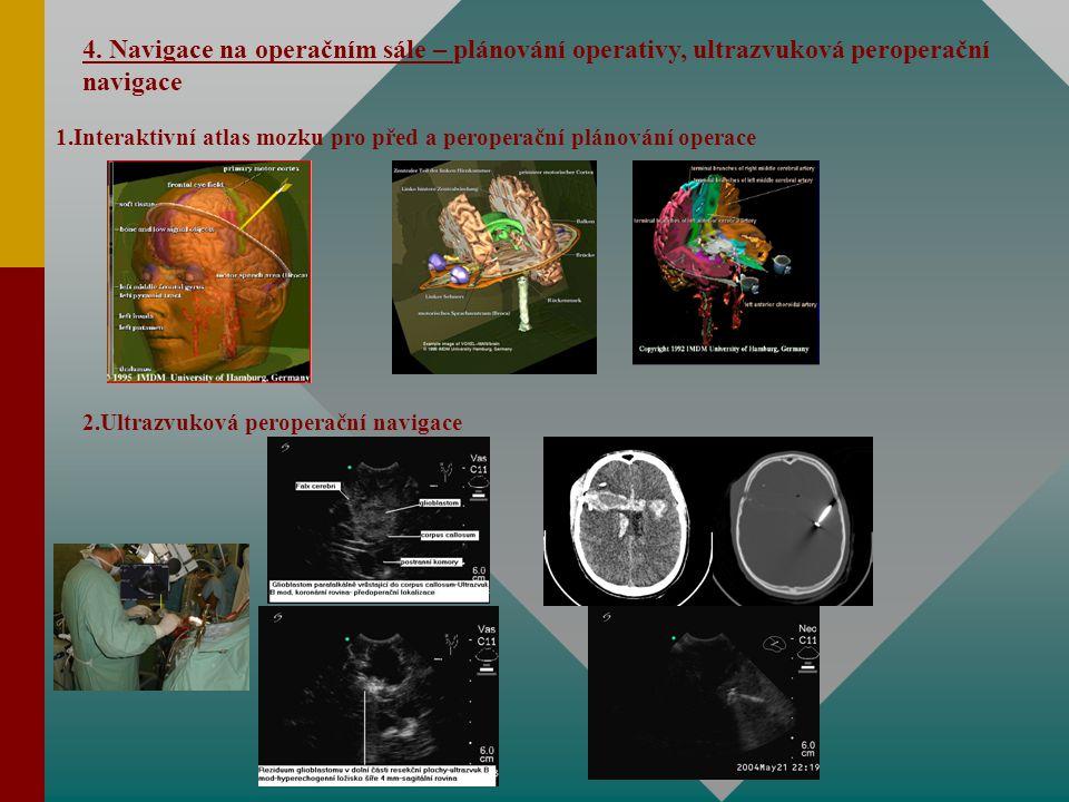 4. Navigace na operačním sále – plánování operativy, ultrazvuková peroperační navigace