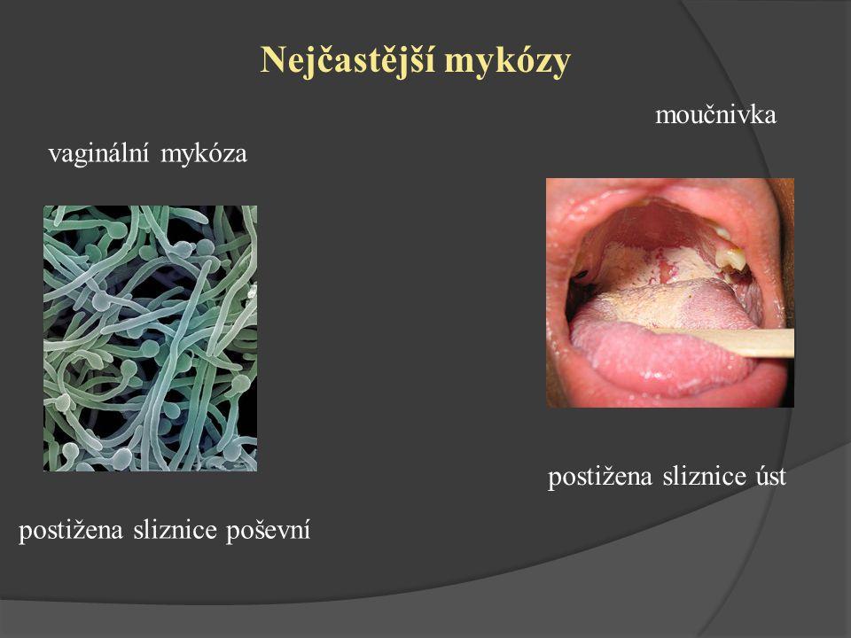 Nejčastější mykózy moučnivka vaginální mykóza postižena sliznice úst