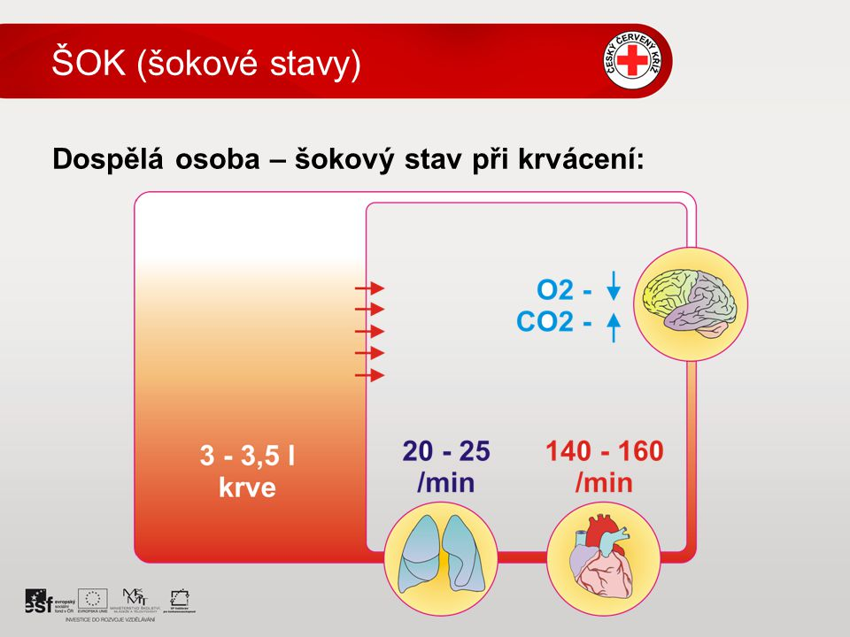 ŠOK (šokové stavy) Dospělá osoba – šokový stav při krvácení: 5 5