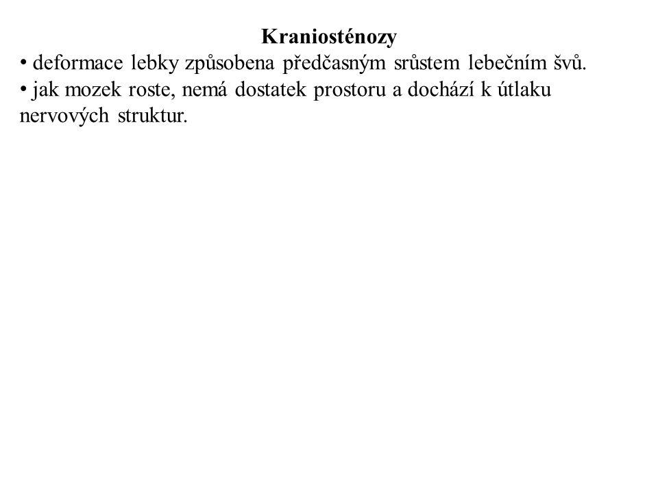 Kraniosténozy deformace lebky způsobena předčasným srůstem lebečním švů.