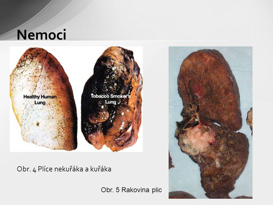 Nemoci Obr. 4 Plíce nekuřáka a kuřáka Obr. 5 Rakovina plic
