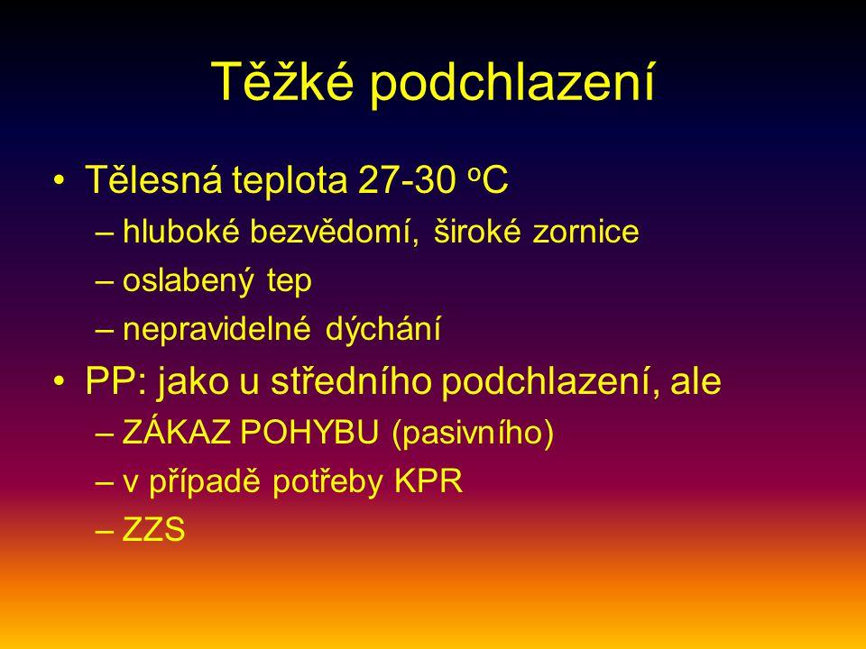 Těžké podchlazení Tělesná teplota 27-30 oC