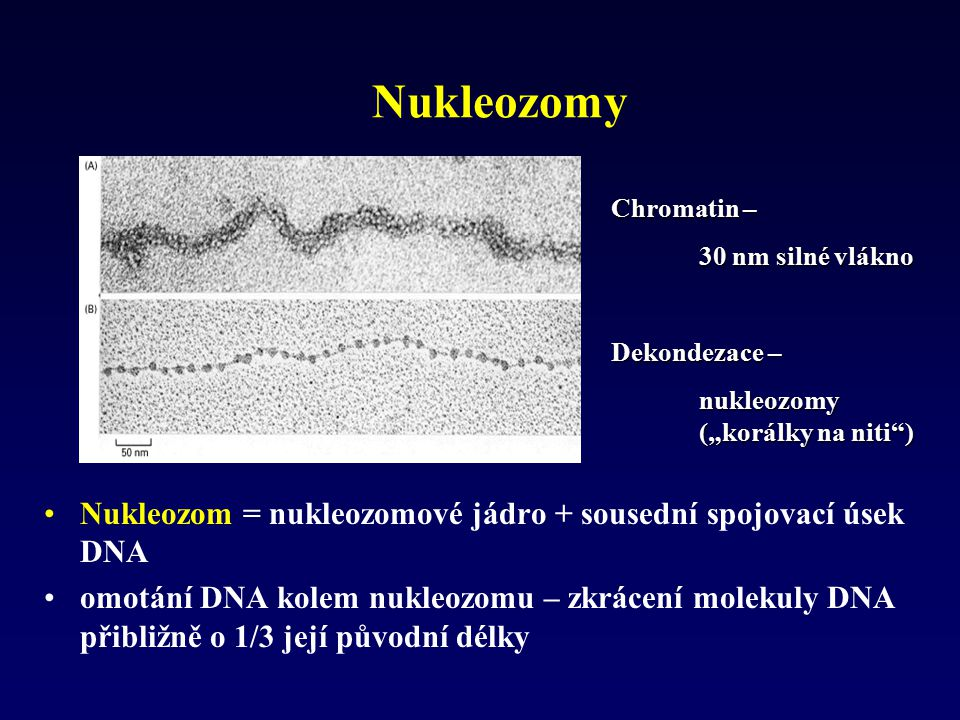 "Nukleozomy Chromatin – 30 nm silné vlákno. Dekondezace – nukleozomy (""korálky na niti )"