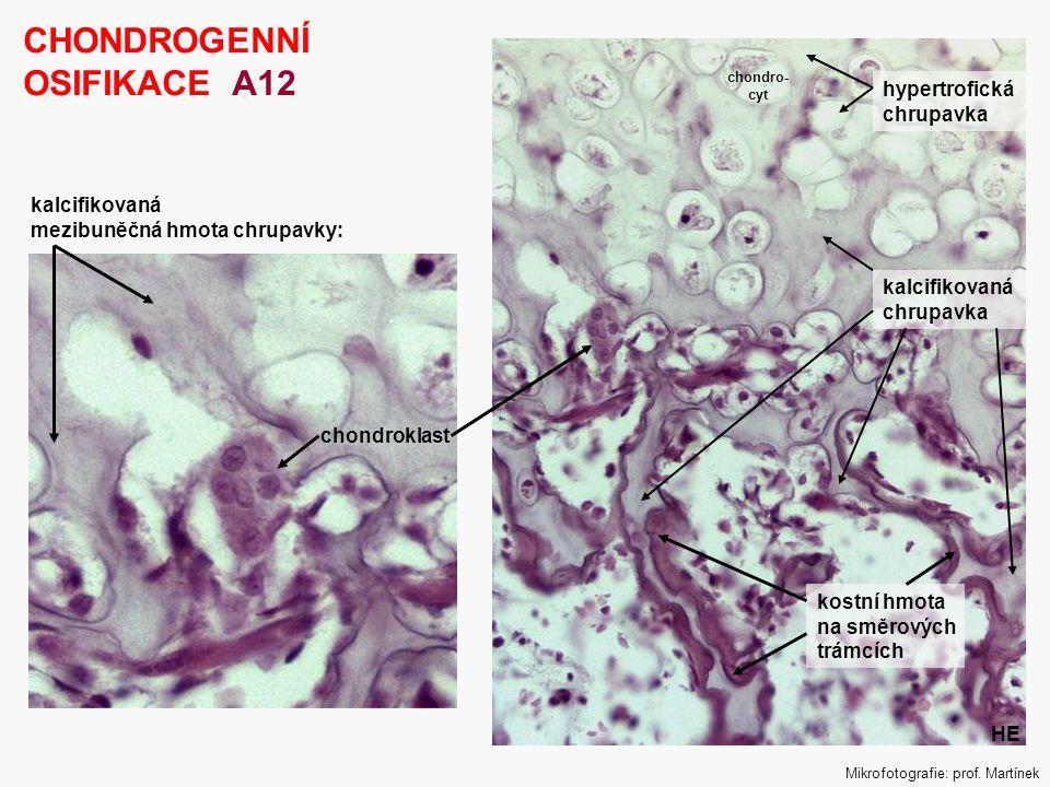 CHONDROGENNÍ OSIFIKACE A12 hypertrofická chrupavka kalcifikovaná