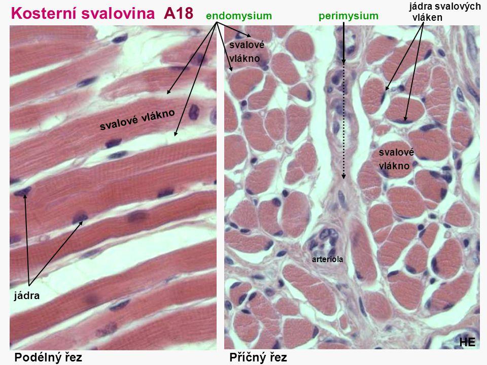 Kosterní svalovina A18 HE Podélný řez Příčný řez endomysium perimysium