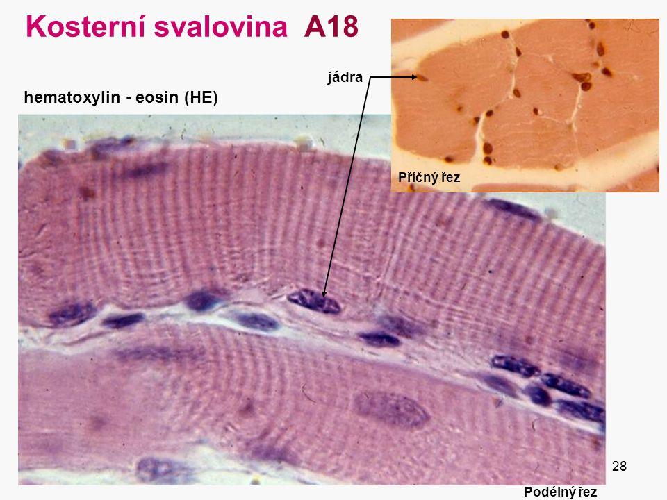 Kosterní svalovina A18 hematoxylin - eosin (HE) jádra Příčný řez