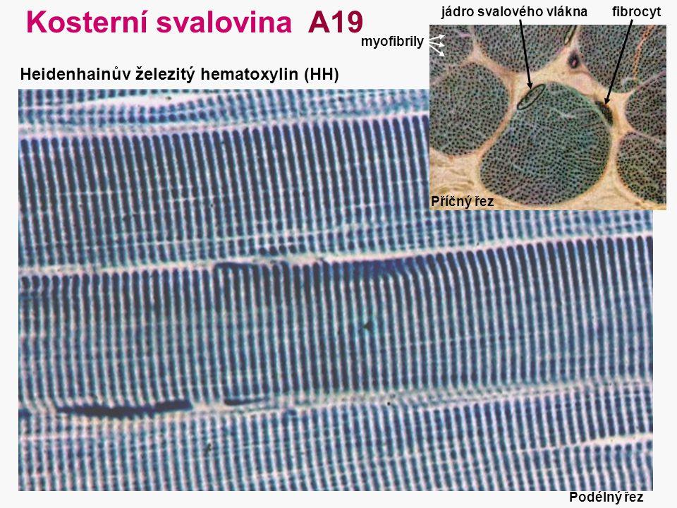 Kosterní svalovina A19 Heidenhainův železitý hematoxylin (HH)