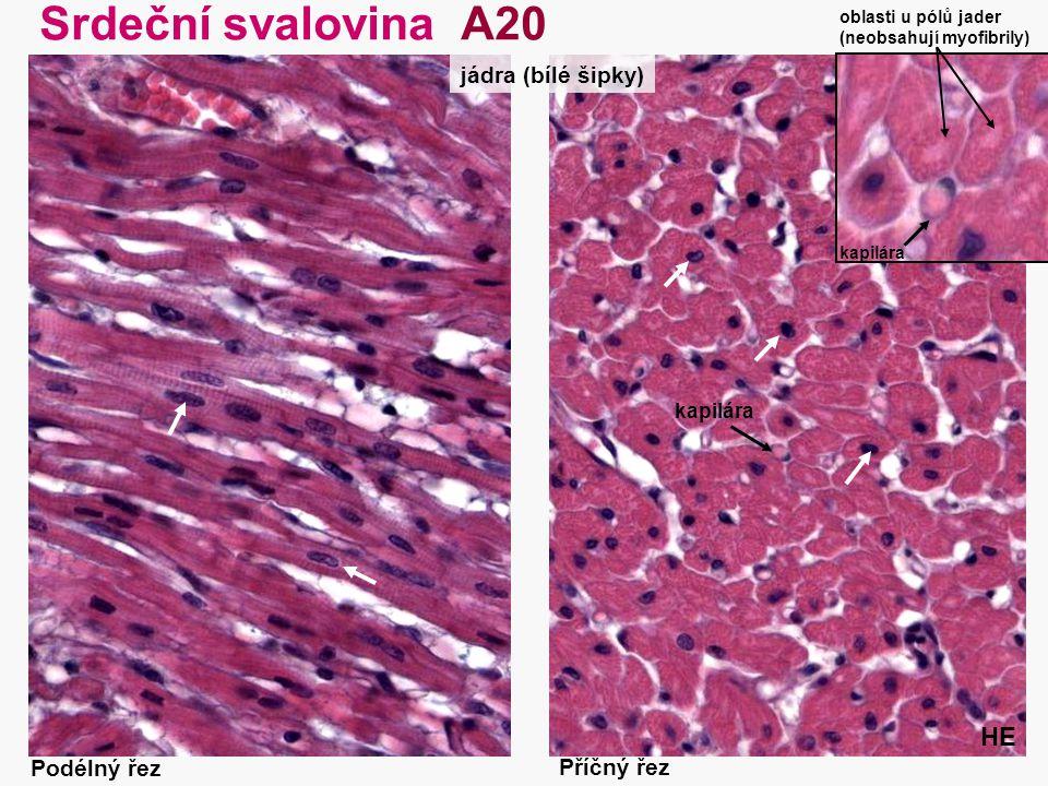 Srdeční svalovina A20 HE jádra (bílé šipky) Podélný řez Příčný řez