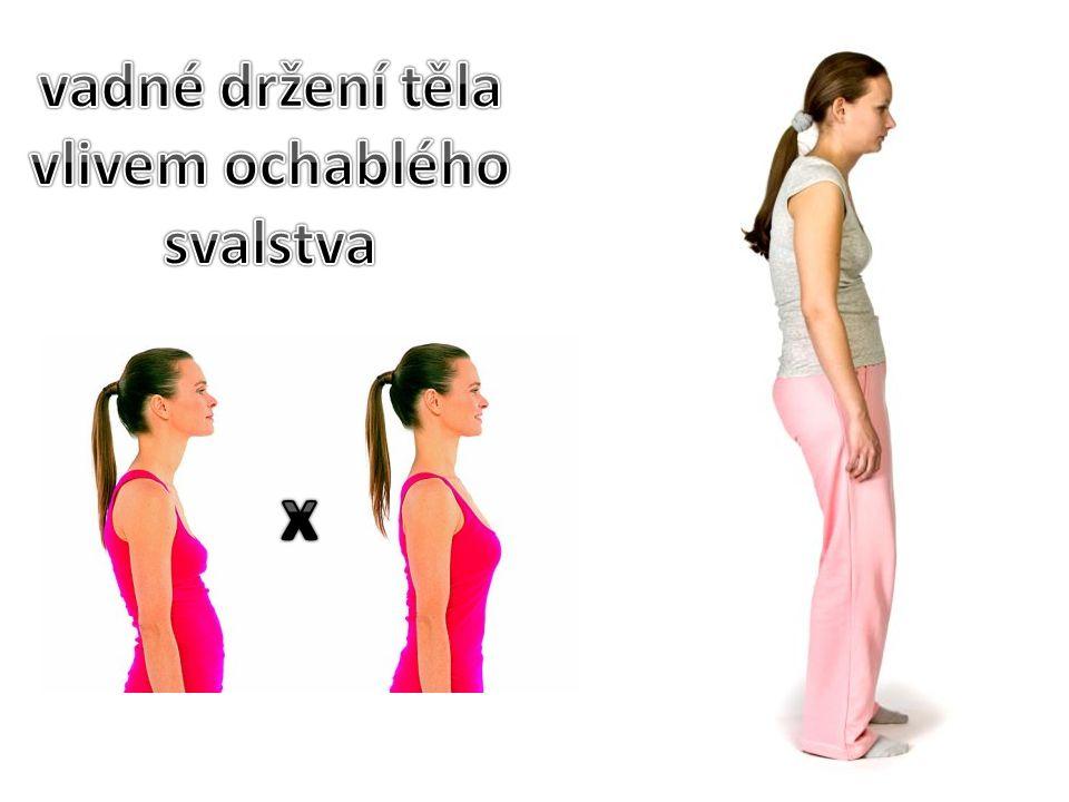 vadné držení těla vlivem ochablého svalstva