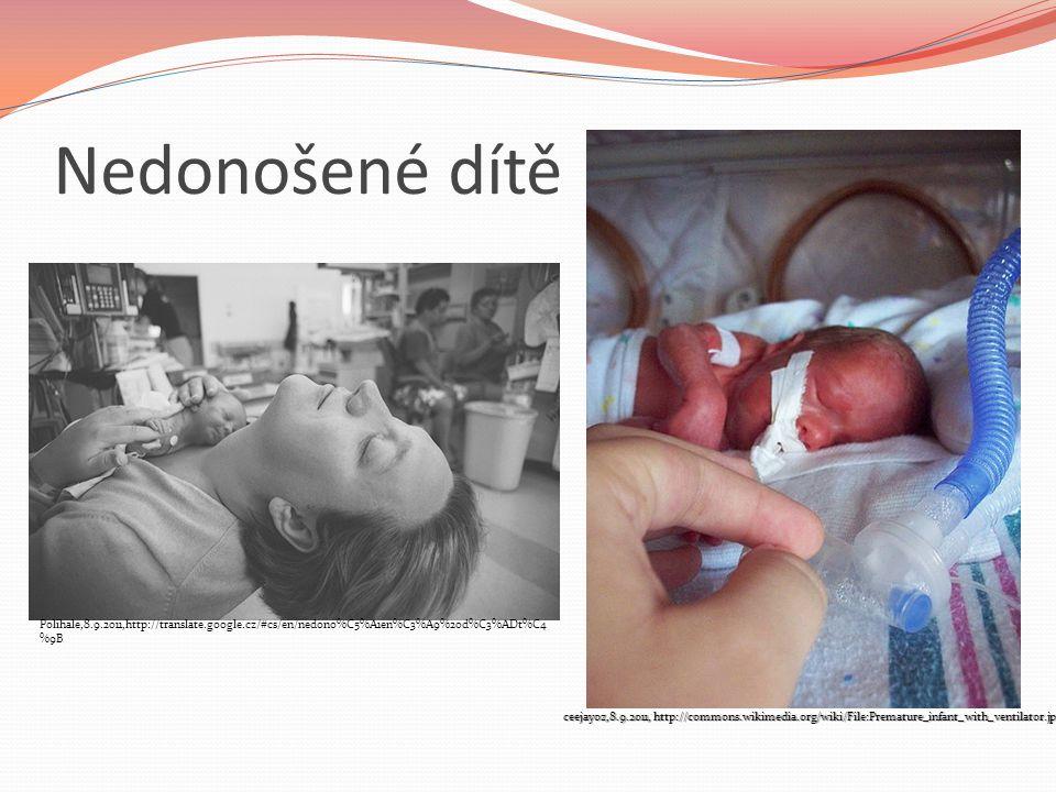 Nedonošené dítě Polihale,8.9.2011,http://translate.google.cz/#cs/en/nedono%C5%A1en%C3%A9%20d%C3%ADt%C4%9B.
